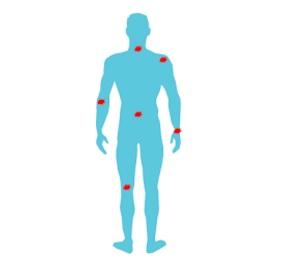 prévenir TMS troubles musculo squelettiques